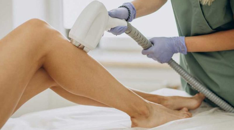 Benefits of a laser hair removal treatment